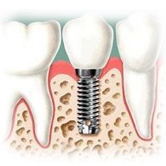 partes del implante dental