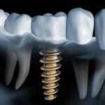 Implantes dentales ¿Me durarán toda la vida?