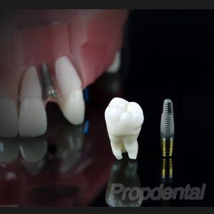 injerto de hueso en la regeneración ósea para implantes