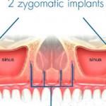 Implante cigomático