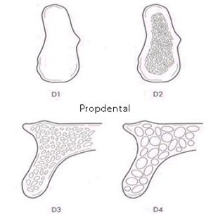 densidad de hueso para implantes