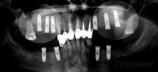 elevación de seno maxilar para implantes dentales