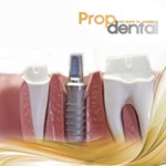Implantes dentales, ven a Propdental a ponerte tus implantes